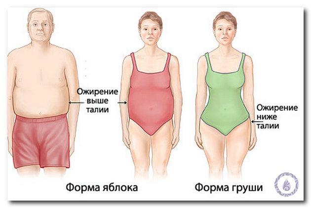 ожирение 3 степени фото у женщин
