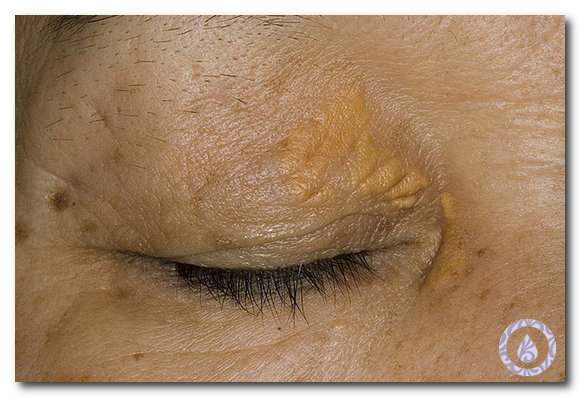 кожные проявления диабета фото