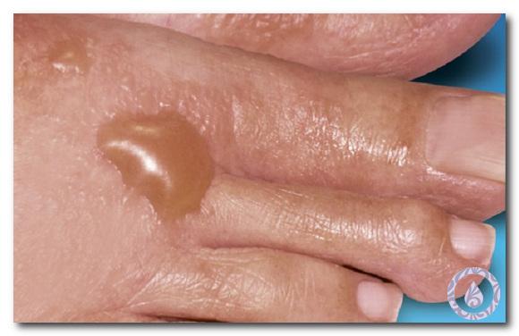 кожные проявления при сахарном диабете