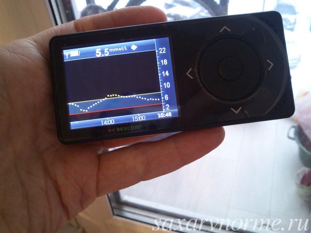 Система постоянного мониторирования глюкозы - Декском (Dexcom)