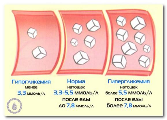 Гипогликемия: причины, симтомы, лечение и первая помощьдствия