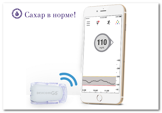 Система постоянного мониторинга Декском G5 Мобайл (Dexcom G5 Mobile)