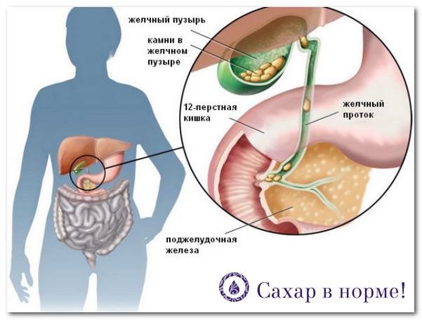 низкоуглеводное питание и камни в желчном пузыре