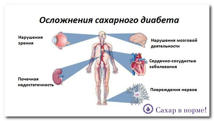 диабет 2 типа можно ли вылечить