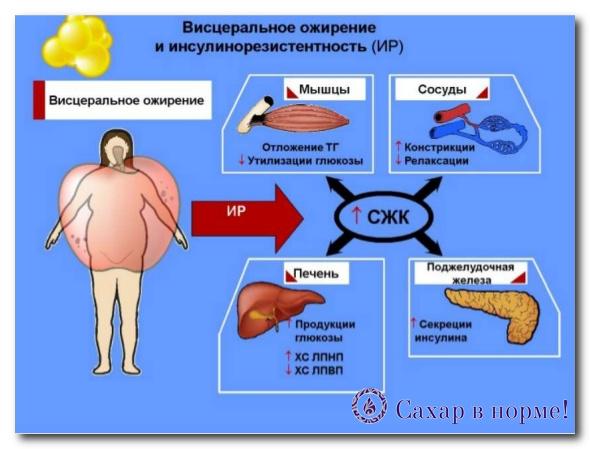 синдром инсулинорезистентности