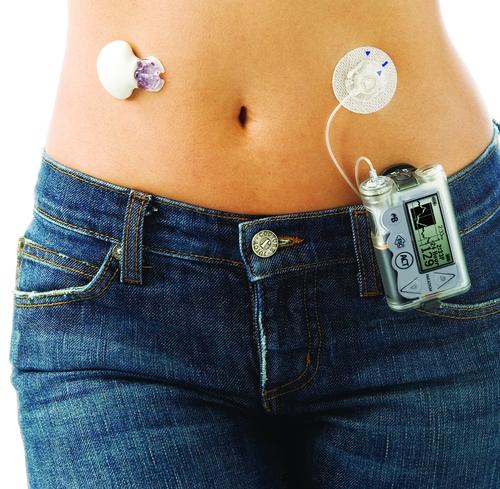 Инсулиновая помпа Медтроник
