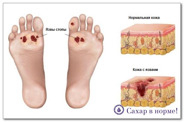 сахарный диабет симптомы у мужчин фото ноги