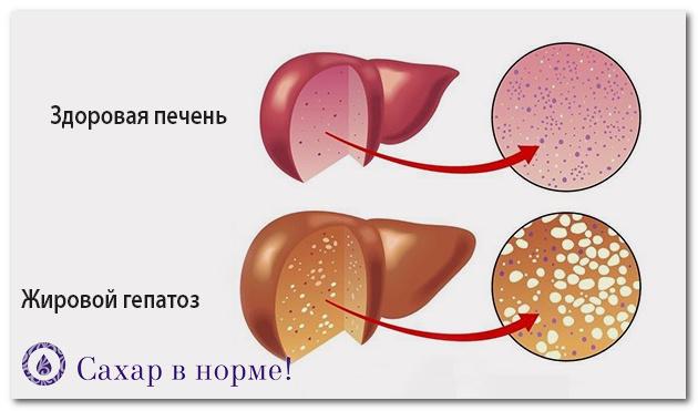 Низкоуглеводное питание и печень